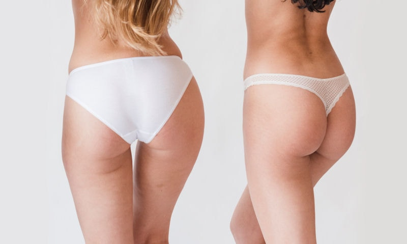 Are thongs better than underwear