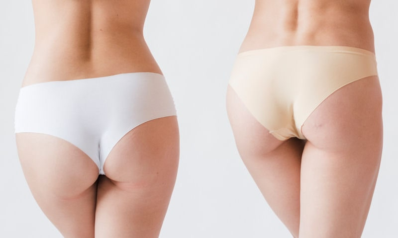 Difference between Panty and Brief